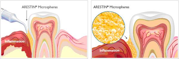Dr. Louis Vita | Periodontics - Treating Gum Disease